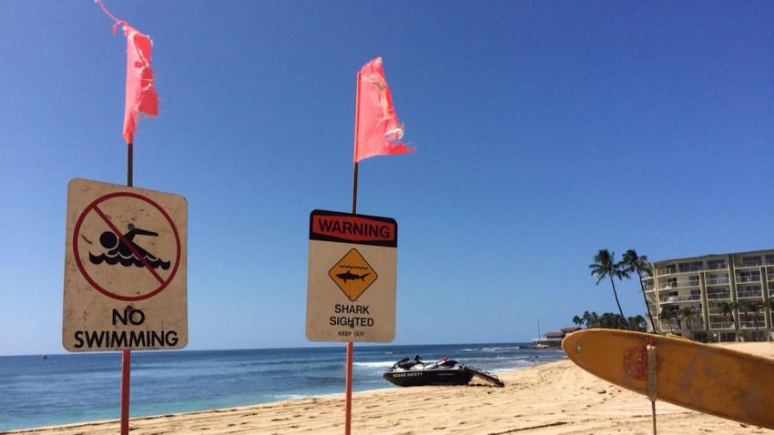 Shark Warnings Boy Attacked