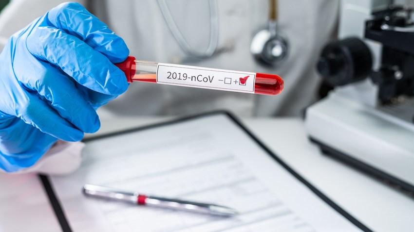 Un medico con guantes aguantando una muestra de sangre que dice COVID-19
