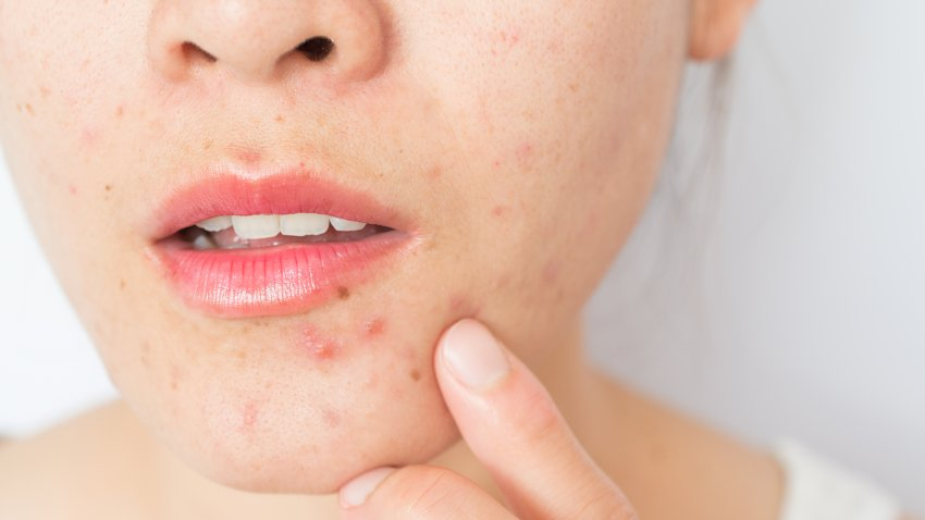 File image of a woman with acne on her face.