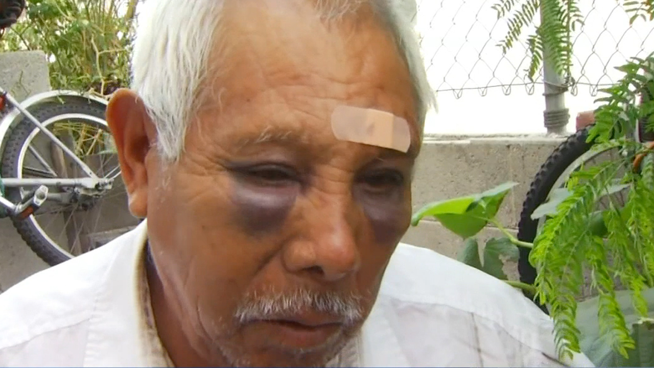 Juan Martinez, a 71-year-old street vendor, was attacked with brass knuckles and robbed of his money on a North Hollywood street. He speaks with NBC4 on Thursday, Oct. 13, 2016.