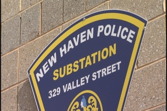 Police Investigating After Woman's Thumb Bitten Off in New Haven
