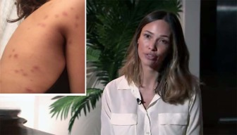 Victoria's Secret Model Sues Hotel Over Bed Bug Bites