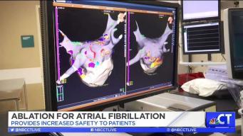 CT LIVE!: Safer Treatment for AFib at Saint Francis Hospital