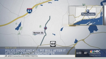 Manchester Police Shoot Pit Bull Attacking Girl
