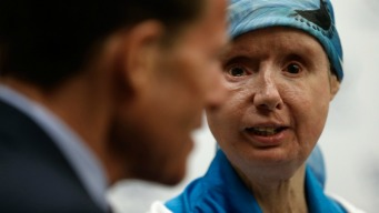 Body of Chimp Attack Victim Rejecting Face Transplant