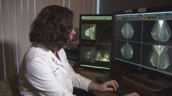 3-D Mammogram Technology Helps Detect Breast Cancer Earlier