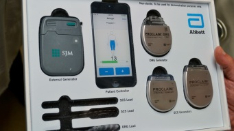 Spinal-Cord Stimulators Help Some Patients, Injure Others