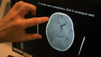 Man Gets 30 Years for Shaking Baby, Causing Brain Damage