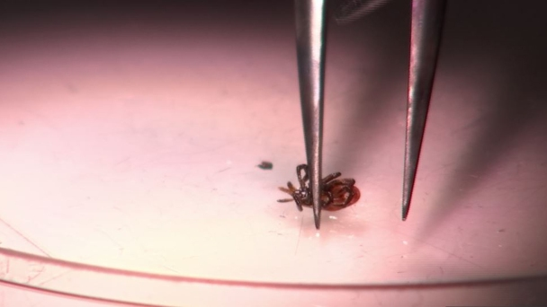 State Lab Strained by High Number of Ticks Needing Testing