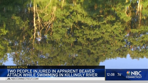 [HAR] Beaver Attacks Two People in Killingly