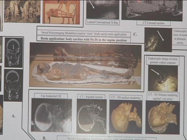 [HAR] Mummy Mystery