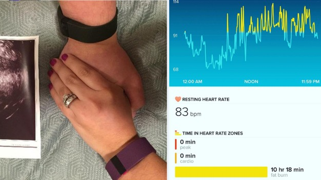 NYC Couple Learns of Pregnancy From 'Broken' Fitbit