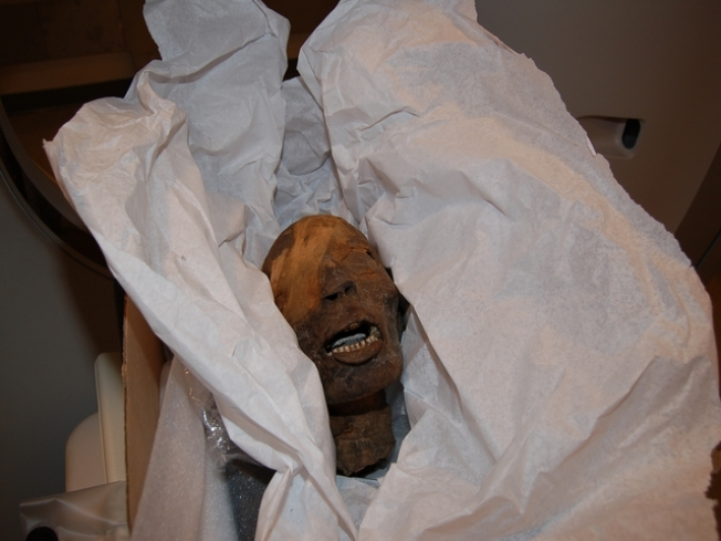 Tooth Decay Killed the Mummy