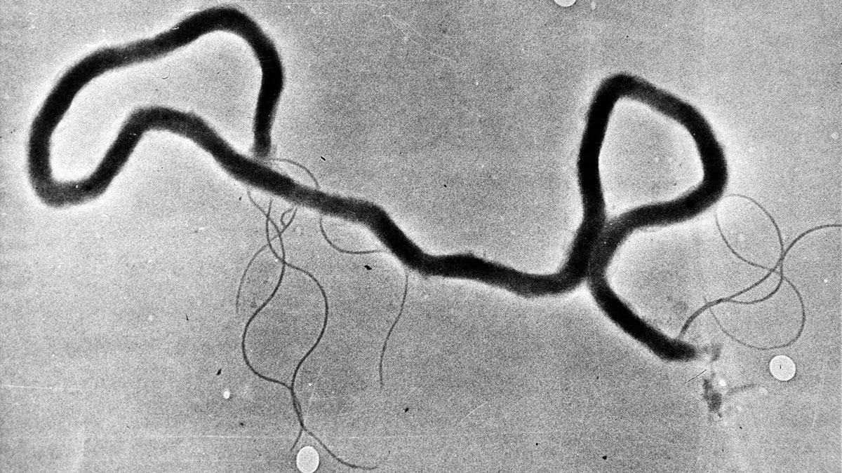 In this May 23, 1944, file photo, the organism treponema pallidum, which causes syphilis, is seen through an electron microscope.