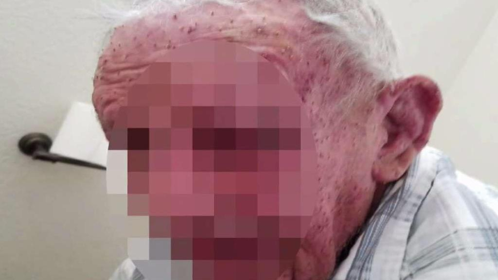 A man was attacked by hundreds of bees on Monday, July 24, 2017.
