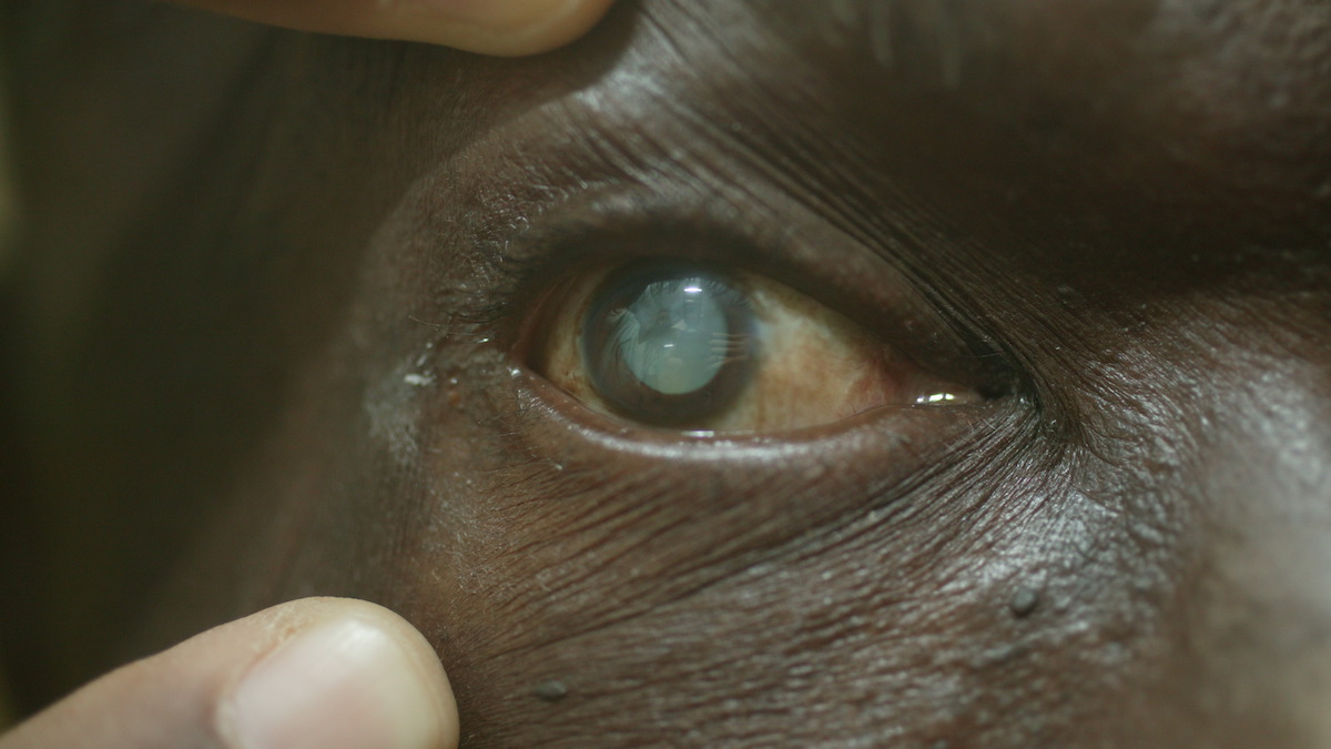 FILE - Male patient's eye with mature cataract.