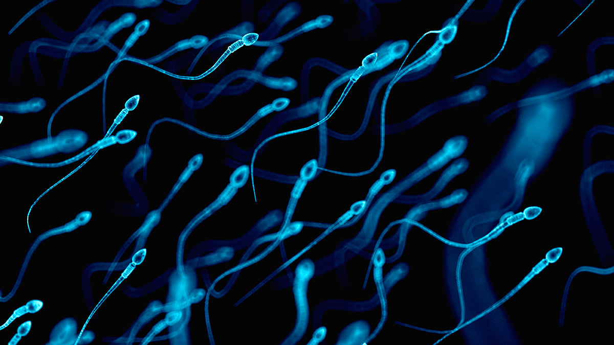 Human sperm, illustration. A recent meta-analysis found a 40-year decline in sperm count in a large sample of men across North America, Europe, Australia and New Zealand.