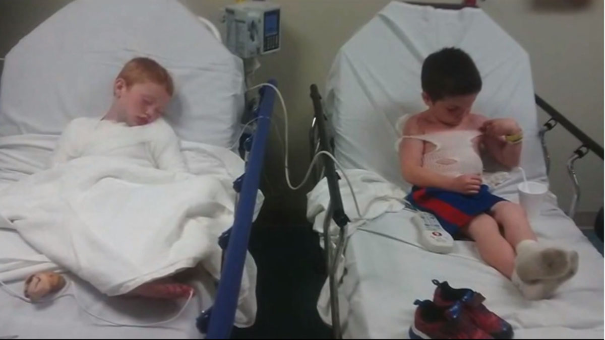 An Oklahoma day care is being investigated after two young boys suffered severe sunburns.