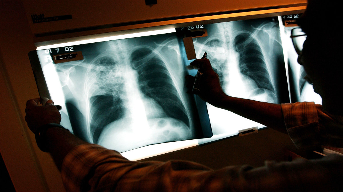 A doctor examines the x-rays of a tuberculosis (TB) patient in this file photo.