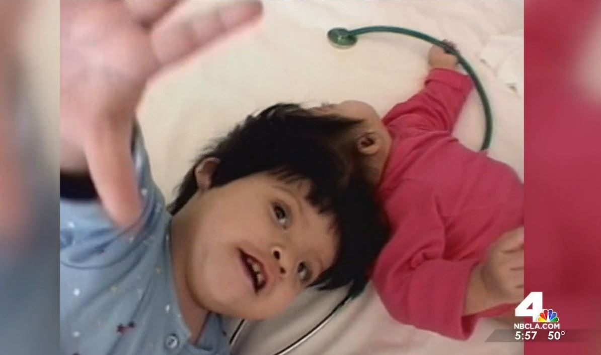 Thirteen years after a life-changing operation that separated once-conjoined twins, they were reunited Monday with the doctors and staff who cared for them after they were separated. (Published Dec. 14, 2015.)
